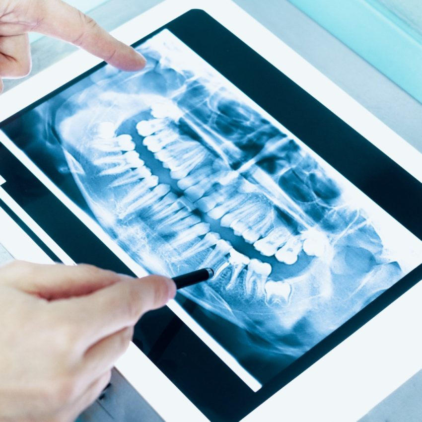 Dental x-ray and dentist hands